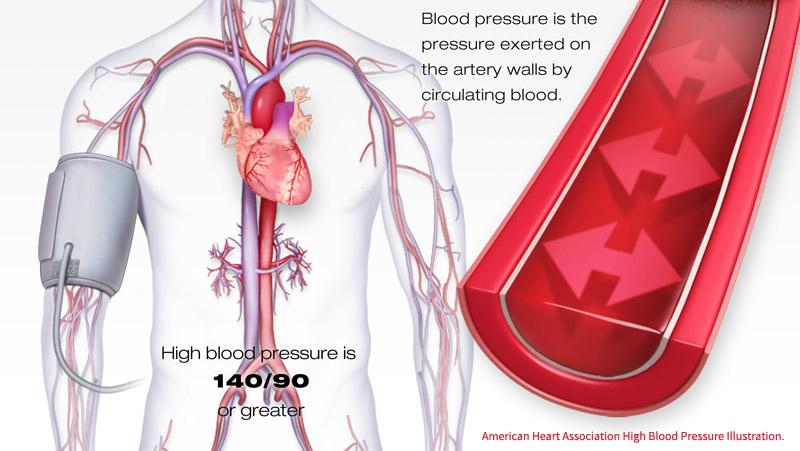 Υπέρταση και κυκλοφορία - hypertension-circulation