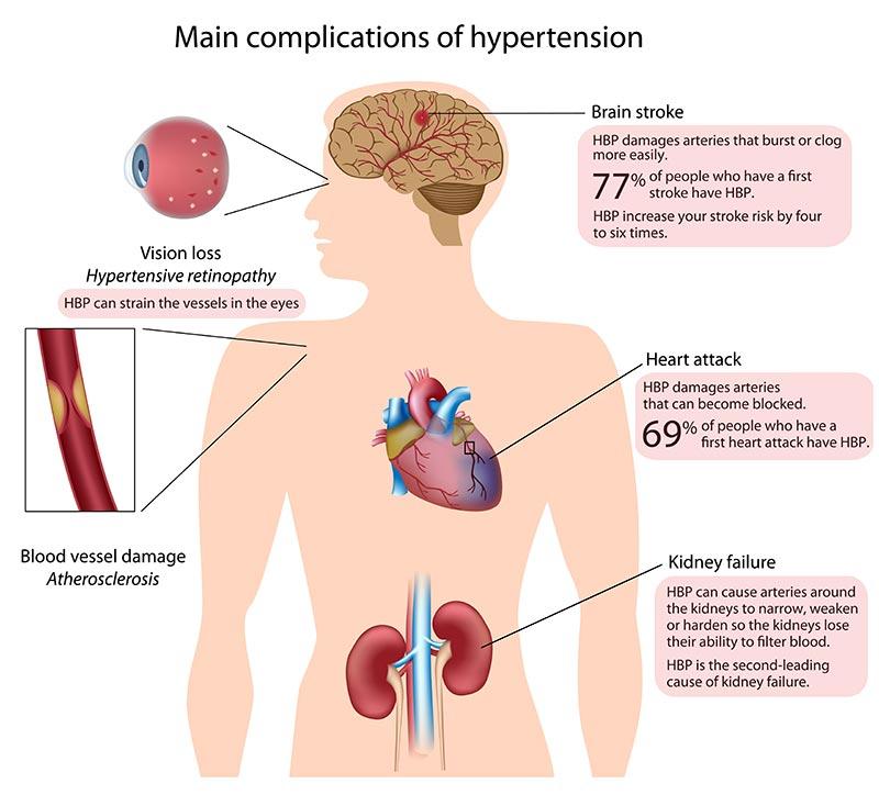 Αρτηριακή Υπέρταση - Συμπτώματα
