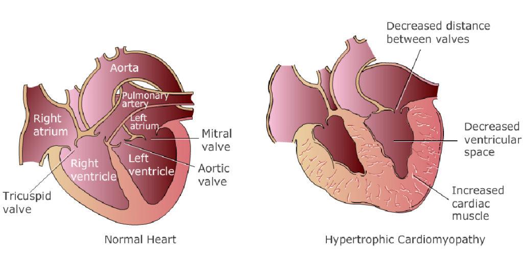 Υπέρταση - Υπερτροφική Μυοκαρδιοπάθεια - hypertension-heart-hypertrophic-cardiomyopathy