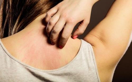 Ατοπική Δερματίτιδα: Συμπτώματα, Αίτια, Θεραπεία