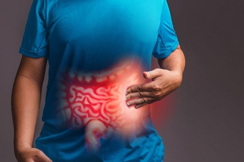Irritable Bowel Syndrome and Indicated Diet