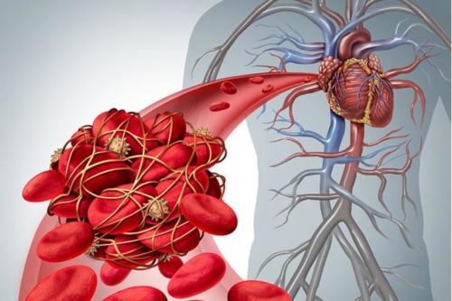 Ομοκυστεΐνη - Το «ένοχο» αμινοξύ